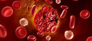 blood-clot-treatment-options-featuredb