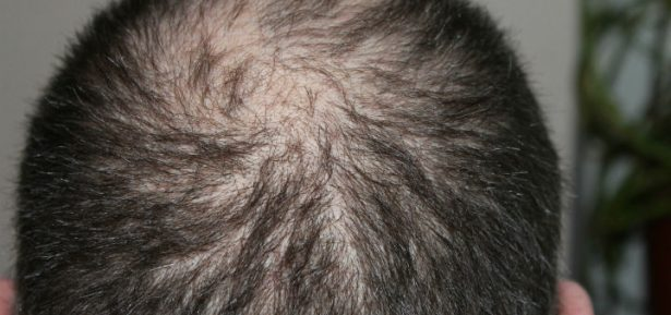 Get the Ultimate Hair Loss Treatment for Your Hair, hair loss
